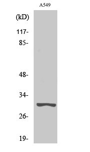 Fig. Western Blot analysis of various cells using Trypsin-3 Polyclonal Antibody. Secondary antibody (catalog#: A21020) was diluted at 1:20000.
