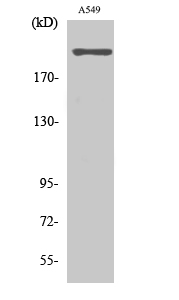 Fig. Western Blot analysis of various cells using T-type Ca++ CP α1H Polyclonal Antibody. Secondary antibody (catalog#: A21020) was diluted at 1:20000.
