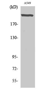 Fig. Western Blot analysis of various cells using UBR5 Polyclonal Antibody. Secondary antibody (catalog#: A21020) was diluted at 1:20000.