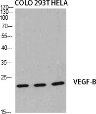 Fig.1. Western Blot analysis of various cells using VEGF-B Polyclonal Antibody diluted at 1:2000. Secondary antibody (catalog#: A21020) was diluted at 1:20000.