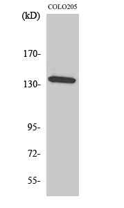 Fig. Western Blot analysis of various cells using α-protein Kinase 1 Polyclonal Antibody. Secondary antibody (catalog#: A21020) was diluted at 1:20000.