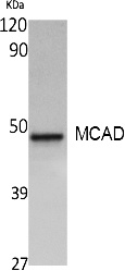Fig. Western Blot analysis of extracts from A549 cells, using MCAD Polyclonal Antibody. Secondary antibody (catalog#: A21020) was diluted at 1:20000.