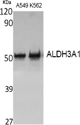Fig. Western Blot analysis of extracts from A549, K562 cells, using ALDH3A1 Polyclonal Antibody. Secondary antibody (catalog#: A21020) was diluted at 1:20000.