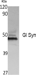 Fig. Western Blot analysis of extracts from K562 cells, using Gl Syn Polyclonal Antibody. Secondary antibody (catalog#: A21020) was diluted at 1:20000.