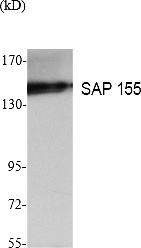 Fig. Western Blot analysis of extracts from K562 cells, using SAP 155 Polyclonal Antibody. Secondary antibody (catalog#: A21020) was diluted at 1:20000.