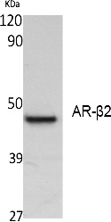 Fig. Western Blot analysis of extracts from K562 cells, using AR-β2 Polyclonal Antibody. Secondary antibody (catalog#: A21020) was diluted at 1:20000.