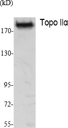 Fig. Western Blot analysis of extracts from K562 cells, using Topo IIα Polyclonal Antibody. Secondary antibody (catalog#: A21020) was diluted at 1:20000.