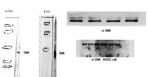 Fig. Western Blot analysis of various cells using α-SMA Polyclonal Antibody diluted at 1:500. Secondary antibody (catalog#: A21020) was diluted at 1:20000.