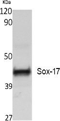 Fig. Western Blot analysis of extracts from Jurkat cells, using Sox-17 Polyclonal Antibody. Secondary antibody (catalog#: A21020) was diluted at 1:20000.