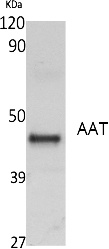 Fig.1. Western Blot analysis of extracts from K562 cells, using AAT Polyclonal Antibody. Secondary antibody (catalog#: A21020) was diluted at 1:20000.
