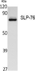 Fig.1. Western Blot analysis of extracts from Jurkat cells, using SLP-76 Polyclonal Antibody. Secondary antibody (catalog#: A21020) was diluted at 1:20000.