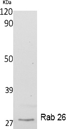 Fig.1. Western Blot analysis of extracts from K562 cells, using Rab 26 Polyclonal Antibody. Secondary antibody (catalog#: A21020) was diluted at 1:20000.