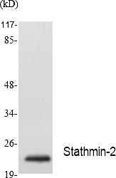 Fig.1. Western Blot analysis of extracts from Jurkat cells, using Stathmin-2 Polyclonal Antibody. Secondary antibody (catalog#: A21020) was diluted at 1:20000.