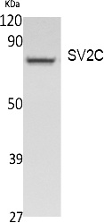 Fig.1. Western Blot analysis of extracts from Jurkat cells, using SV2C Polyclonal Antibody. Secondary antibody (catalog#: A21020) was diluted at 1:20000.