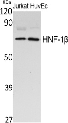 Fig. Western Blot analysis of extracts from Jurkat cells, using HNF-1β Polyclonal Antibody. Secondary antibody (catalog#: A21020) was diluted at 1:20000.