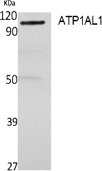 Fig. Western Blot analysis of extracts from rat stomach, using ATP1AL1 Polyclonal Antibody. Secondary antibody (catalog#: A21020) was diluted at 1:20000.