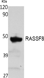 Fig. Western Blot analysis of extracts from rat stomach, using RASSF8 Polyclonal Antibody. Secondary antibody (catalog#: A21020) was diluted at 1:20000.