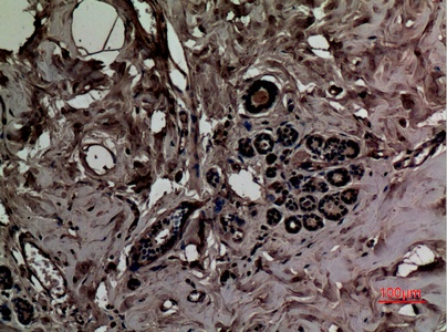 Fig.2. Immunohistochemical analysis of paraffin-embedded human-breast, antibody was diluted at 1:100.