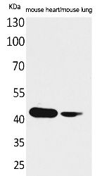 Fig.1. Western Blot analysis of Mouse heart, Mouse lung cells using Actin-α cardiac muscle Polyclonal Antibody. Secondary antibody (catalog#: A21020) was diluted at 1:20000.