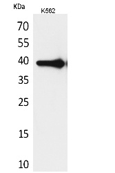 Fig. Western Blot analysis of K562 cells using HSP77/76 Polyclonal Antibody. Secondary antibody (catalog#: A21020) was diluted at 1:20000.