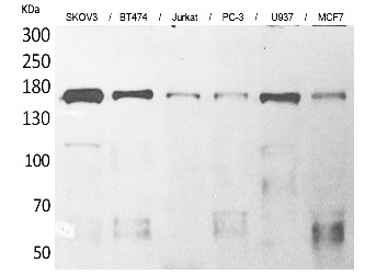 Fig. Western Blot analysis of SKOV3, BT474, Jurkat, PC-3, U937, MCF7 cells using SCP-2 Polyclonal Antibody. Secondary antibody (catalog#: A21020) was diluted at 1:20000.