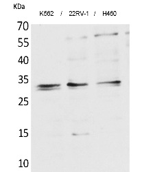 Fig. Western Blot analysis of K562,  22RV-1,  H460 cells using SCP-3 Polyclonal Antibody. Secondary antibody (catalog#: A21020) was diluted at 1:20000.