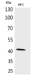 Fig.1. Western Blot analysis of MFC cells using α-SMA Polyclonal Antibody. Secondary antibody (catalog#: A21020) was diluted at 1:20000.