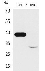 Fig.1. Western Blot analysis of H460, K562 cells using Cathepsin L Polyclonal Antibody. Secondary antibody (catalog#: A21020) was diluted at 1:20000.