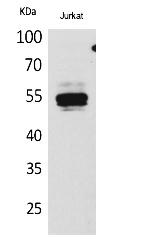 Fig.1. Western Blot analysis of Jurkat cells using DPP7 Polyclonal Antibody. Secondary antibody (catalog#: A21020) was diluted at 1:20000.
