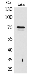 Fig.1. Western Blot analysis of Jurkat cells using Prothrombin Polyclonal Antibody. Secondary antibody (catalog#: A21020) was diluted at 1:20000.