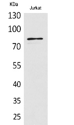 Fig.1. Western Blot analysis of Jurkat cells using PREP Polyclonal Antibody. Secondary antibody (catalog#: A21020) was diluted at 1:20000.