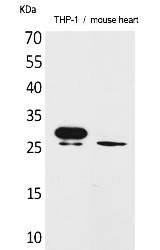 Fig.1. Western Blot analysis of THP-1,  Mouse heart cells using TREM-1 Polyclonal Antibody. Secondary antibody (catalog#: A21020) was diluted at 1:20000.