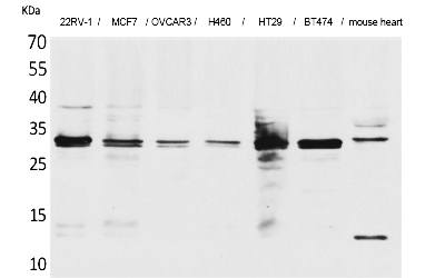 Fig.1. Western Blot analysis of 22RV-1,  MCF7, OVCAR3, H460, HT29, BT474, Mouse heart cells using Latexin Polyclonal Antibody. Secondary antibody (catalog#: A21020) was diluted at 1:20000.