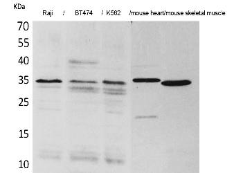 Fig. Western Blot analysis of Raji, BT474, K562,  Mouse heart, Mouse skeletal muscle cells using Claudin-17 Polyclonal Antibody. Secondary antibody (catalog#: A21020) was diluted at 1:20000.
