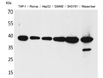 Fig.1. Western Blot analysis of THP-1,  Romas, HepG2,  SW480, SHSY5Y, Mouse liver cells using IL-10 Polyclonal Antibody. Secondary antibody (catalog#: A21020) was diluted at 1:20000.
