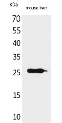 Fig.1. Western Blot analysis of Mouse liver cells using TNF-α Polyclonal Antibody. Secondary antibody (catalog#: A21020) was diluted at 1:20000.