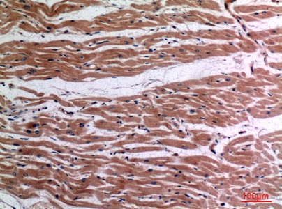 Fig.3. Immunohistochemical analysis of paraffin-embedded human-heart, antibody was diluted at 1:100.
