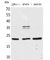 Fig.1. Western Blot analysis of 22RV-1,  BT474, SHSY5Y cells using FGF-12 Polyclonal Antibody. Secondary antibody (catalog#: A21020) was diluted at 1:20000.