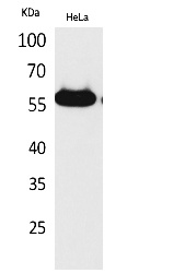 Fig.1. Western Blot analysis of hela cells using Amylase Polyclonal Antibody. Secondary antibody (catalog#: A21020) was diluted at 1:20000.