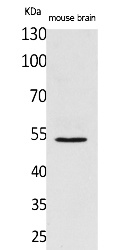 Fig.1. Western Blot analysis of Mouse brain cells using CPE Polyclonal Antibody. Secondary antibody (catalog#: A21020) was diluted at 1:20000.