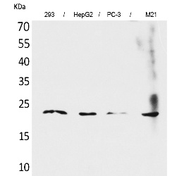 Fig. Western Blot analysis of 293, HepG2,  PC-3, M21 cells using FGF-6 Polyclonal Antibody. Secondary antibody (catalog#: A21020) was diluted at 1:20000.