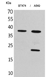 Fig. Western Blot analysis of BT474, A549 cells using IFN-α1 Polyclonal Antibody. Secondary antibody (catalog#: A21020) was diluted at 1:20000.