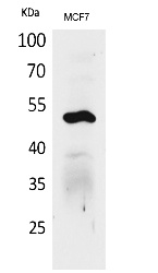 Fig.1. Western Blot analysis of MCF7 cells using Cytokeratin 14 Polyclonal Antibody. Secondary antibody (catalog#: A21020) was diluted at 1:20000.