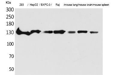 Fig.1. Western Blot analysis of 293, HepG2,  BXPC-3, Raji, Mouse lung, Mouse brain, Mouse spleen cells using IL-16 Polyclonal Antibody. Secondary antibody (catalog#: A21020) was diluted at 1:20000.
