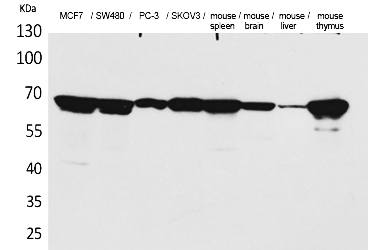Fig.1. Western Blot analysis of MCF7, SW480, PC-3, SKOV3, Mouse spleen, Mouse brain, Mouse liver, Mouse thymus cells using Lamin B1 Polyclonal Antibody. Antibody was diluted at 1:500. Secondary antibody (catalog#: A21020) was diluted at 1:20000.