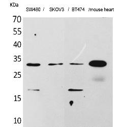 Fig.1. Western Blot analysis of SW480, SKOV3, BT474, Mouse heart cells using FGF-18 Polyclonal Antibody. Secondary antibody (catalog#: A21020) was diluted at 1:20000.