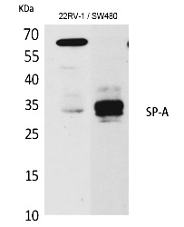 Fig.1. Western Blot analysis of K562,  Mouse lung cells using SP-A Polyclonal Antibody. Secondary antibody (catalog#: A21020) was diluted at 1:20000.