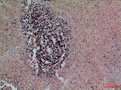 Fig.2. Immunohistochemical analysis of paraffin-embedded human-lung-cancer, antibody was diluted at 1:100.