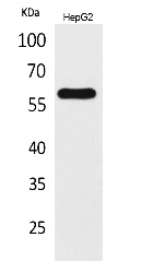 Fig. Western Blot analysis of HepG2 cells using ASIC3 Polyclonal Antibody. Secondary antibody (catalog#: A21020) was diluted at 1:20000.
