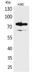 Fig.1. Western Blot analysis of K562 cells using FOXP1 Polyclonal Antibody. Antibody was diluted at 1:1000. Secondary antibody (catalog#: A21020) was diluted at 1:20000.